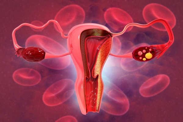 خونریزی بعد از اولین رابطه جنسی