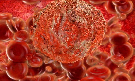 خون ریزی بعد از رابطه جنسی