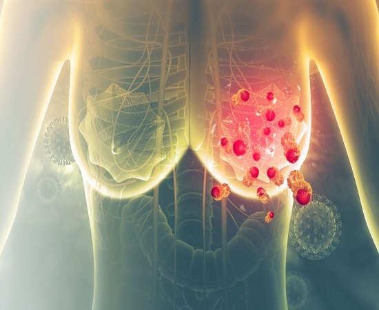 عوامل خطر در سرطان پستان